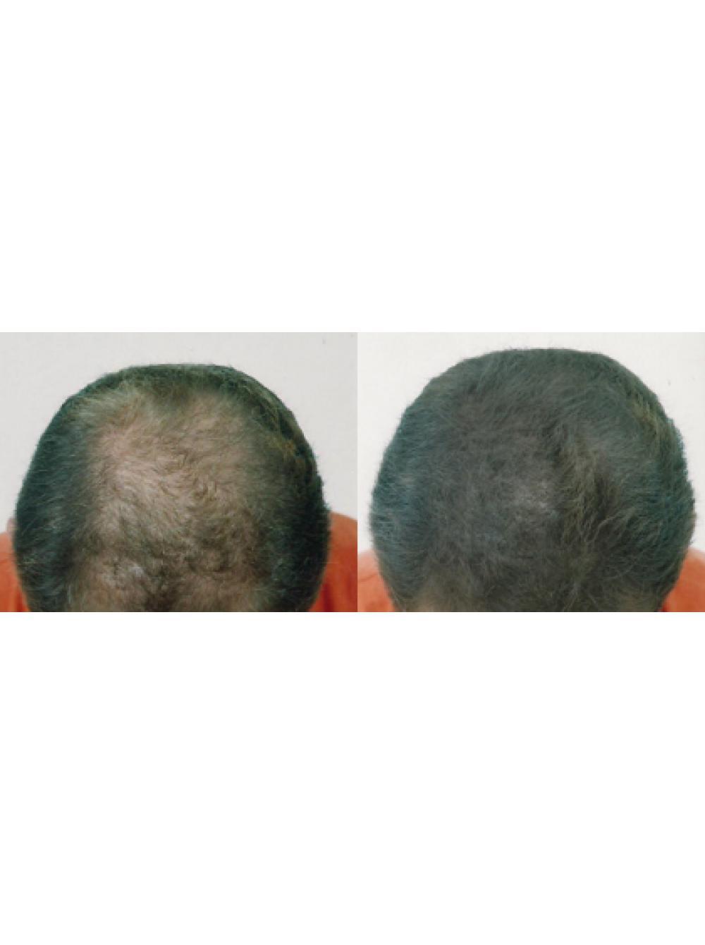 аэрозольный загуститель волос mane 100 мл
