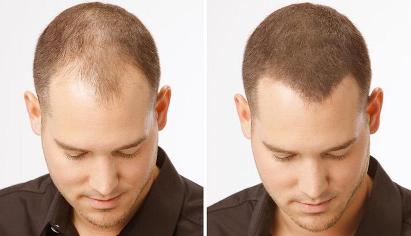 загустители для волос фото